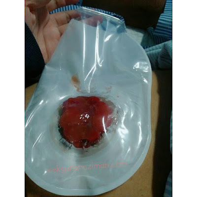 Beg stoma, stoma bag, stoma bag terbaik, review stoma bag