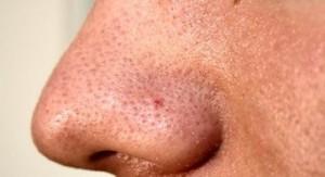 Pimple 3