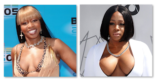 Remy Ma And Rah Ali Plastic Surgery