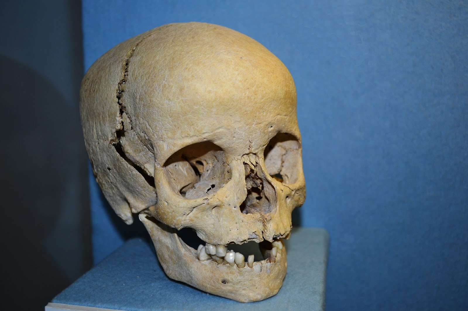 Anthroplogy_-_human_skull_of_a_boy.jpg