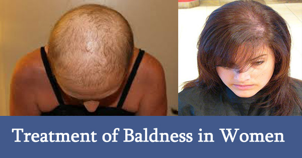 Baldness Cure Women
