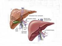 9 Common Liver Cancer symptoms in Child