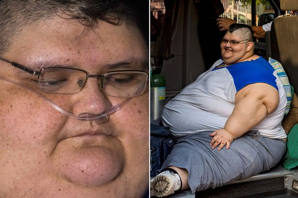 World's Fattest Man Prepares For Life-saving Surgery After Spending 7 Years Confined To A Be {Photos}