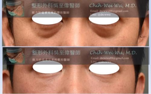 眼袋-%25E7%259C%25BC%25E8%25A2%258B-20190102-500