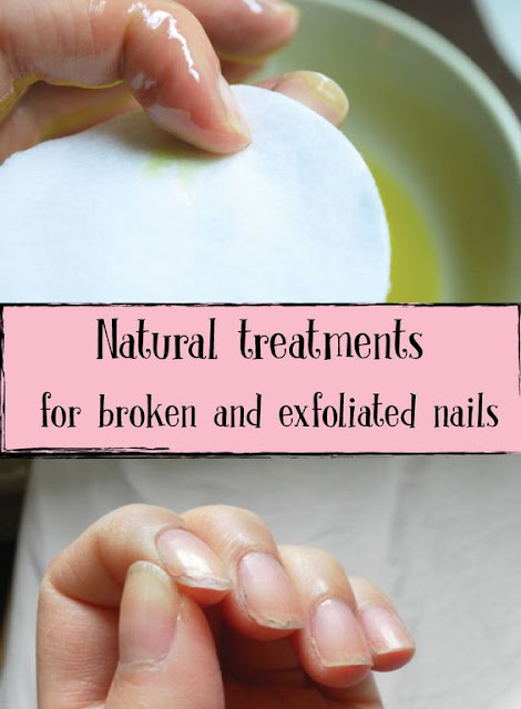 Natural remedies for broken and exfoliated nails