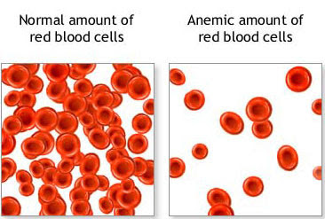 Differences Between the amount of Normal Red Blood Cells and Anemic Red Blood Cells