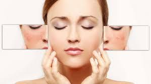 Reaksi Alergi Tidak Cocok Pada Produk Kecantikan