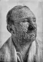 Afectado de viruela (1912)