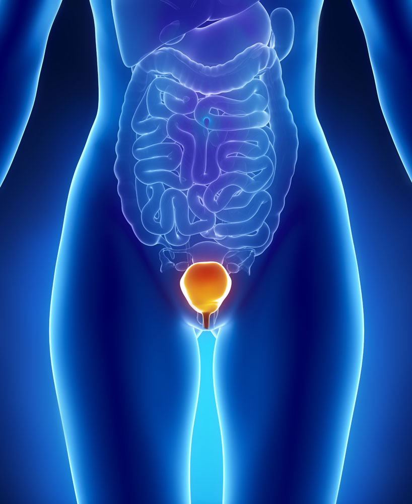 UTIs do not always have obvious signs and symptoms.