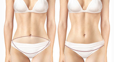 Find Your Flat Abdomen With Wonjin's Abdominoplasty