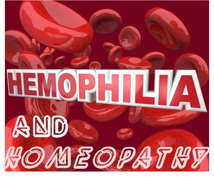 hemophilia and homeopathy