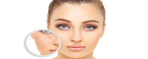 Avoid Rosacea Triggers
