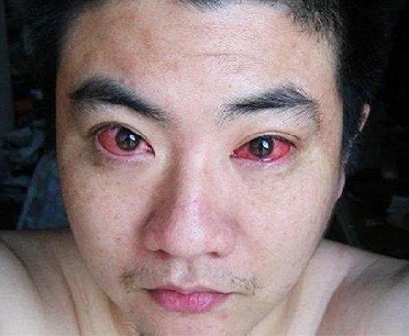 This man was diagnosed with eye cancer after using his mobile phone every night!