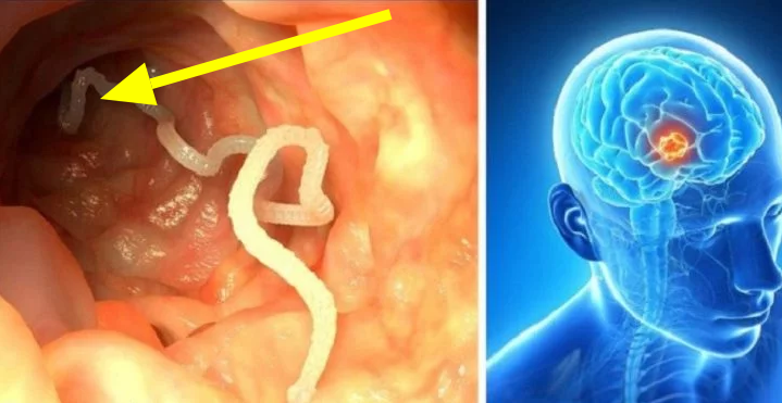 Do Not Eat These Foods, They Cause Worms In Your Body