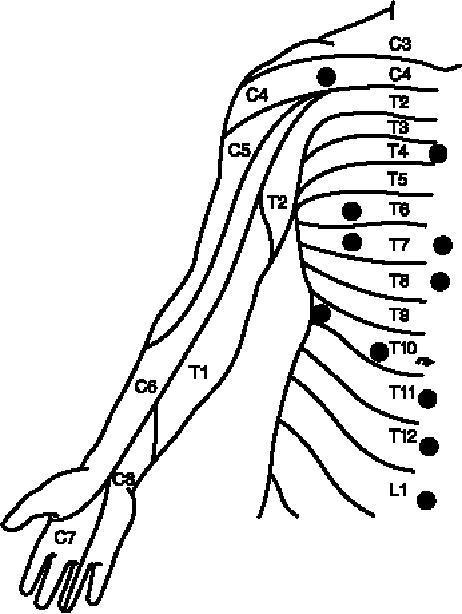 T8 T9 Nerves