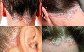 Obat Gatal Eksim Kering Menahun Di Kepala