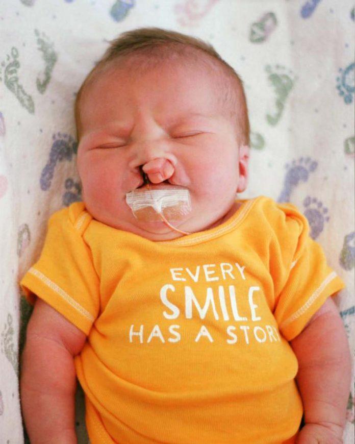lábio leporino-bebê-filho-maternidade-mães-e-filhos-familia-aborto-saúde-gravidez-gestação
