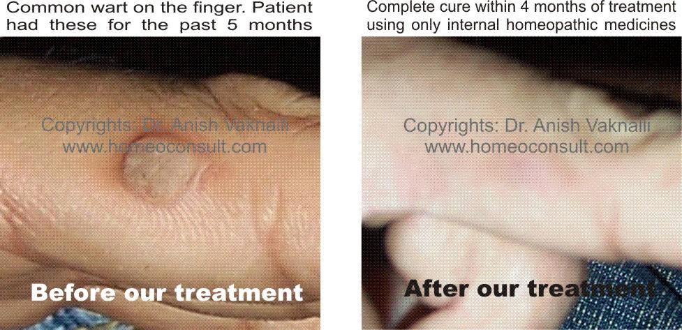HomeoConsult RD: Warts homeopathic treatment, Mumbai India