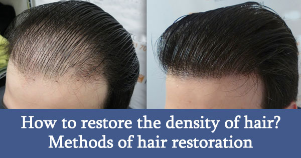 How to restore the density of hair