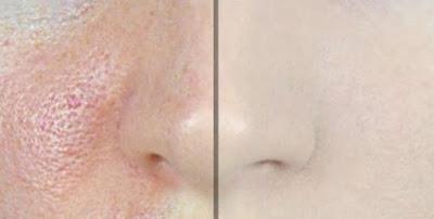 astuces pour fermer les pores