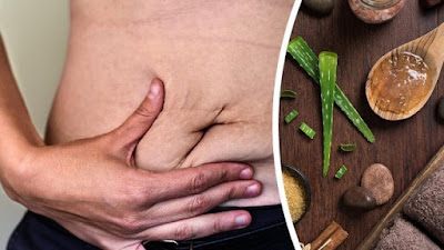 5 Natural Stretch Mark Remedies You've Never Heard About