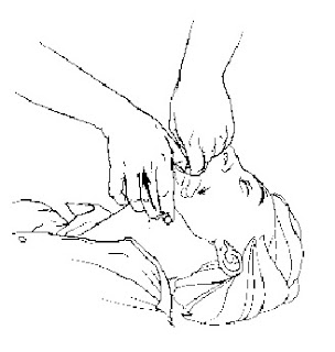 How To Perform The Heimlich Maneuver For Babies, Kids, And Adults
