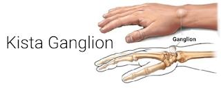 Pengobatan Kista Ganglion Secara Alami