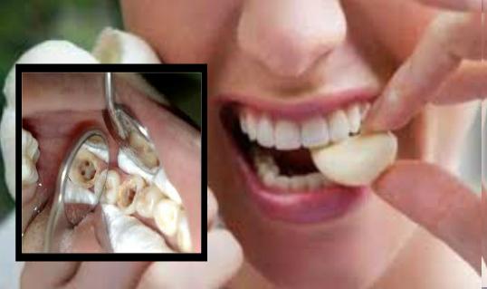 Sakit gigi merupakan salah satu sakit yang di senaraikan sebagai sakit yang mengerikan buat kita.