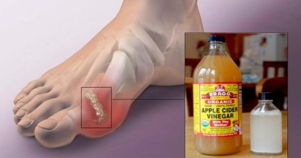treatment for gout guidelines gout disease conditioning urine therapy for gout