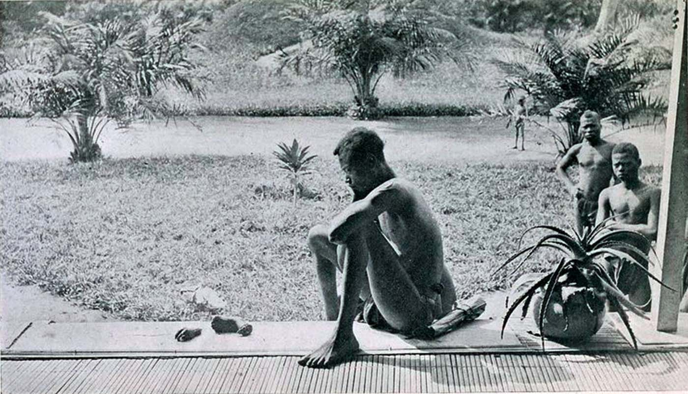 A Congolese man looking at the severed hand and foot of his five-year-old daughter who was killed, and allegedly cannibalized, by the members of Anglo-Belgian India Rubber Company militia.