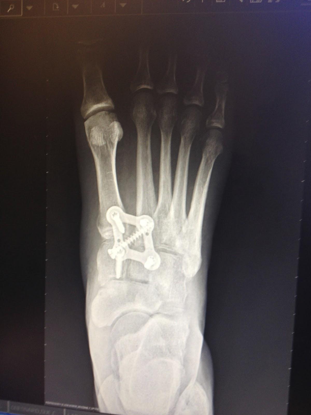 12 Weeks Post Lisfranc Surgery X Rays Lisfrancblog
