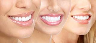 Cách làm trắng răng tự nhiên mà hiệu quả