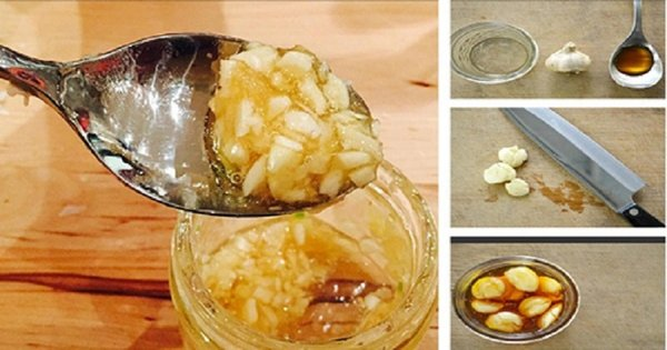 Cách chữa trị viêm họng hạt bằng mật ong kết hợp với tỏi