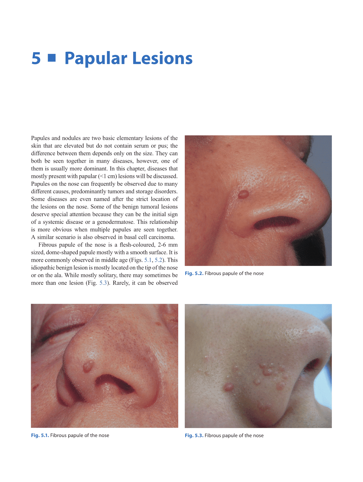Otolaryngology by Alexandros G Sfakianakis: Lesions of the