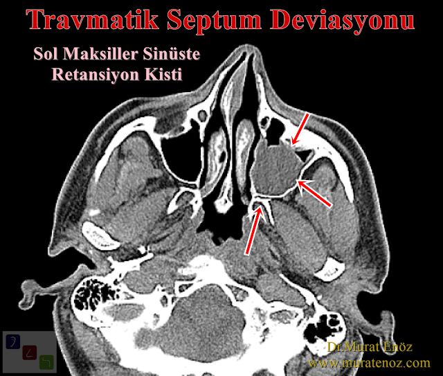 Travmatik septum deviasyonu - Travmatik septum deviasyonu tedavisi - Travmatik burun septumunda eğrilme - Travmatik nazal septum kırığı - Nazal septum deviasyonu tedavisi - Burunda kemik spur formasyonu