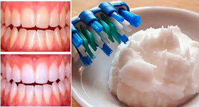 Comment faire son propre dentifrice à la maison 100% naturel