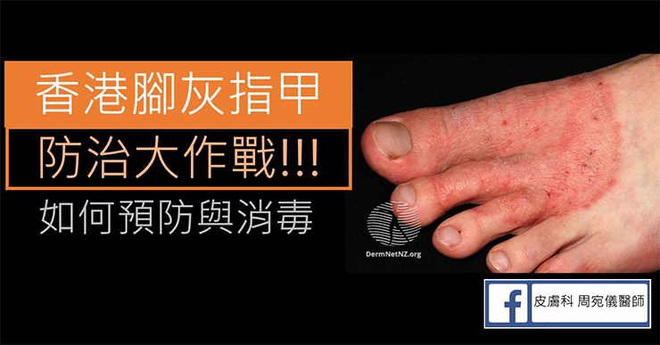 戰勝香港腳/灰指甲!預防與消毒請這樣做