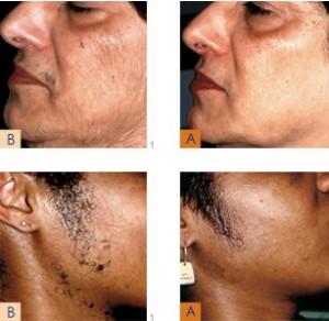yüz ve sakal bölgesi lazerli epilasyon uygulaması öncesi ve sonrası