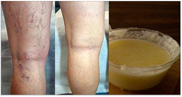 Mi amigo dermatólogo me enseñó este remedio para desaparecer las arañitas ó várices de las piernas.
