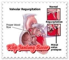 Cara Mengobati Klep Jantung Bocor Sampai Tuntas Tanpa Operasi