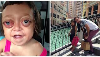 H μητέρα της την πούλησε σε μια συμμορία ναρκομανών που την έβαζαν να ζητιανεύει αλλά ένας εθελοντής της έσωσε τη ζωή