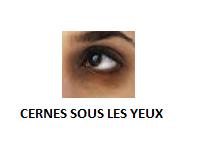 Comment supprimer les cernes sous les yeux