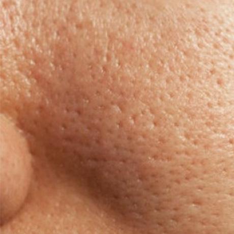 Comme nettoyer la peau huileuse de la personne des points noirs