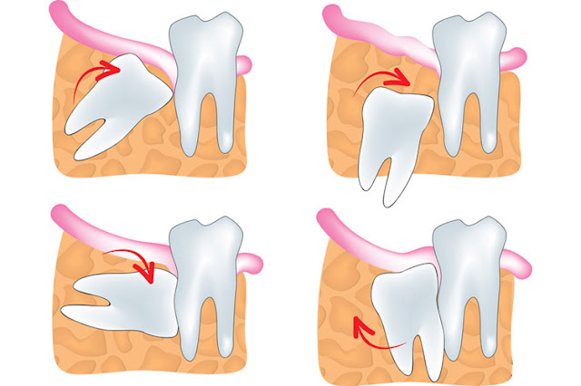 various type and position of wisdom teeth including mesioangular, distoangular, vartical and horizontal impacted wisdom tooth
