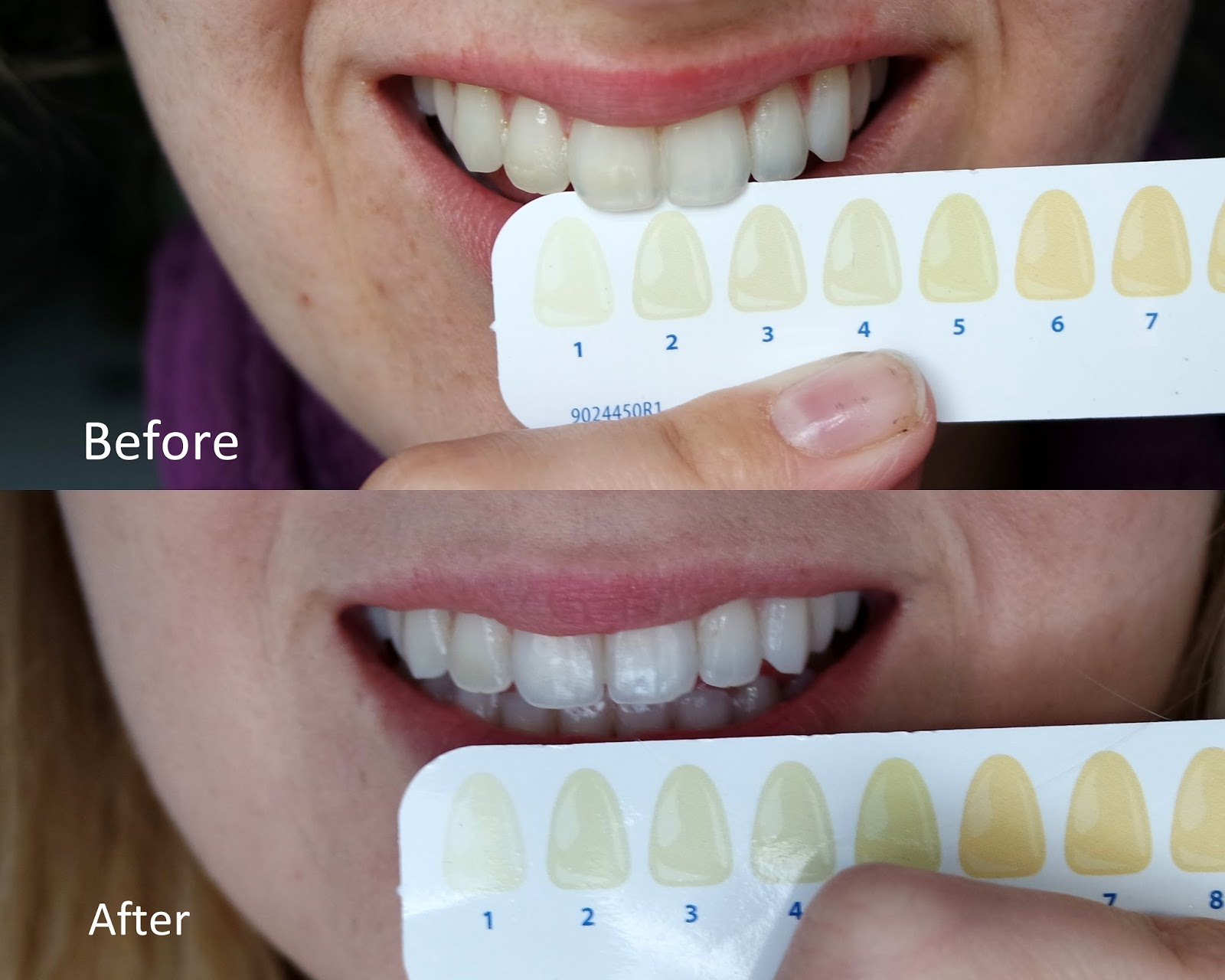 Review Rapidwhite 2 Week Tooth Whitening System Lauren