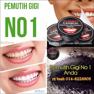 pemutih gigi turbo carbon activated charcoal