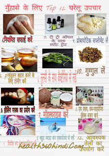 Pimples Home Remedy in Hindi
