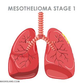 Mesothelioma stage 1