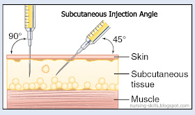 injection subcutaneous b12 nursing intradermal tissue angles skin skills nurse needle syringe shots mosby pharmacology muscle rules method quizlet deeper
