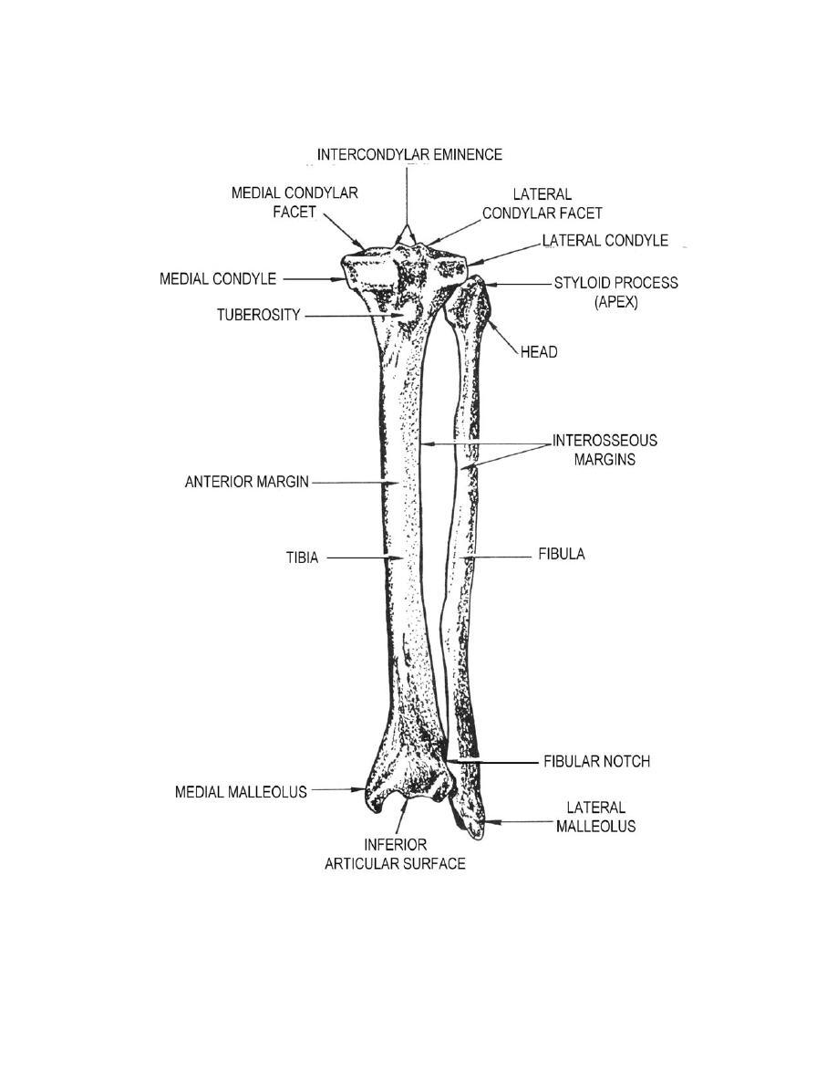 broken fibula diagram